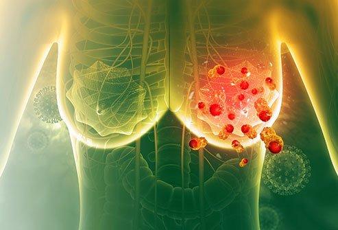 Treatment of Metastatic Breast Cancer (MBC)
