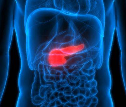 Pancreatic cancer - Warning Signs & Risk Factors | Ankr - Cancer Education & Navigation Platform